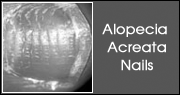 Alopecia Acreata Nails