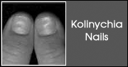 Kolinychia Nails