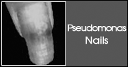 Pseudomonas Nails