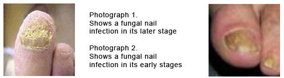 Appearance Of Fungus Nails At An Early Stage