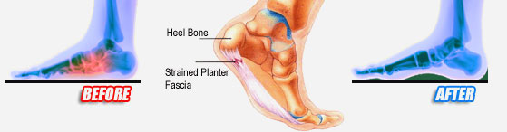 heel pain and plantar fasciitis