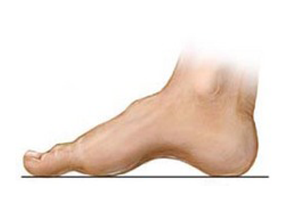 High Arched Foot